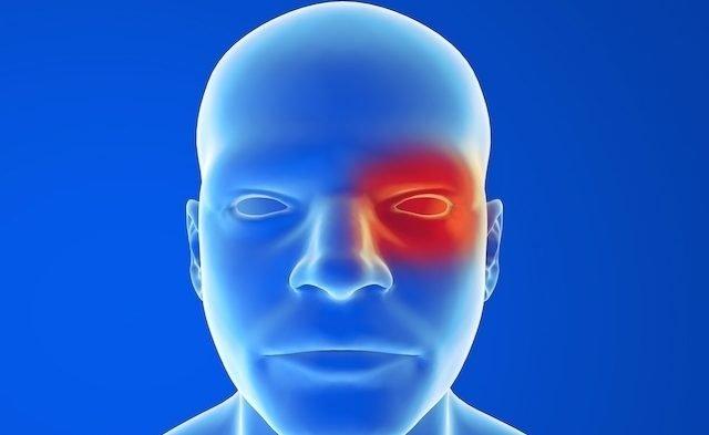Se a gripe chegar junto com a conjuntivite, o que fazer?