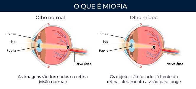 O-que-e-miopia