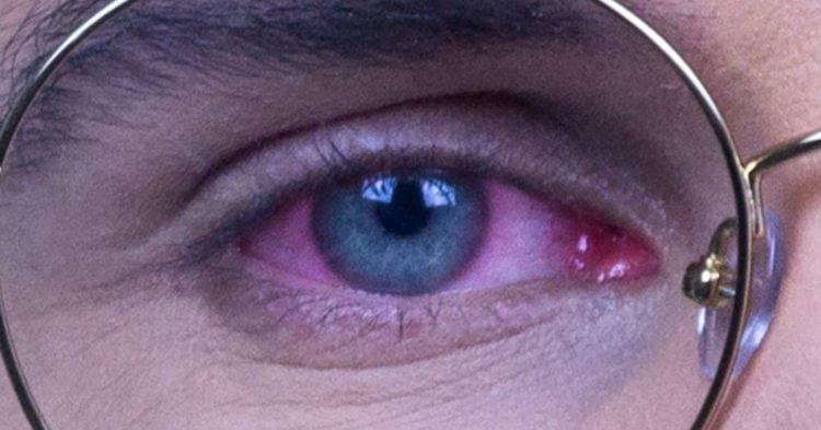 Olhos vermelhos, coçando e inchados: conjuntivite ou blefarite?