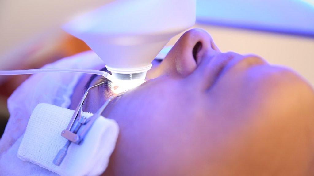 Tratamento-miopia-cirurgia-laser
